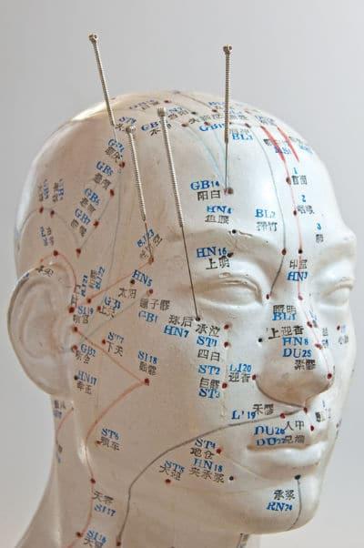 Kopf-Akupunktur in München