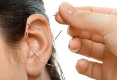 63708106 - acupuncture © tankist276