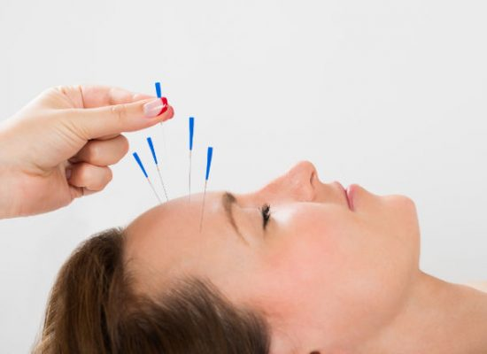 88680793 - Young Woman Receiving Acupuncture Treatment © Andrey Popov